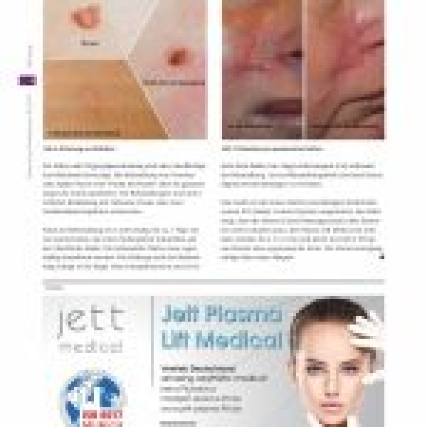 Ästhetische Dermatologie Jett-Plasma-Lift-Medical-in-german-media-page-003-150x150.jpg